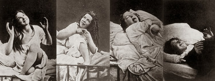 histeria femenina